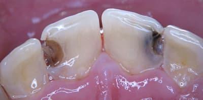 лечении передних зубов