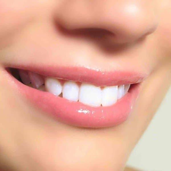 услуги отбеливания зубов
