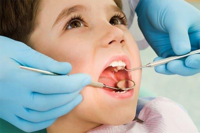 Лечение кариеса молочных зубов
