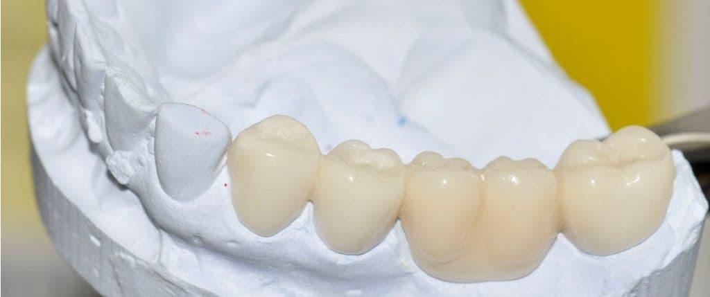 Какие зубы лучше вставить из какого материала