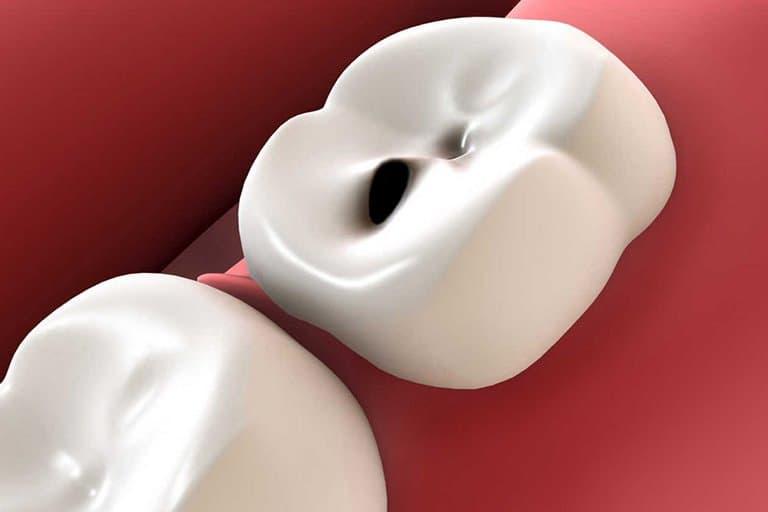 возникновения зубного кариеса