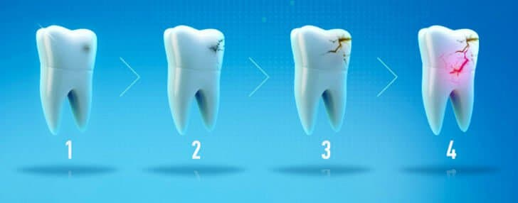 Лечение зуба и корня